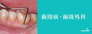 歯周病・歯周外科
